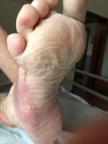 Piaghe da decubito, lesioni da piede diabetico trattate Argento Colloidale Santé Naturels